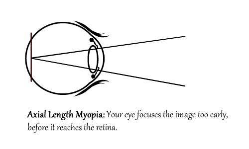 Can You Improve Myopia Naturally