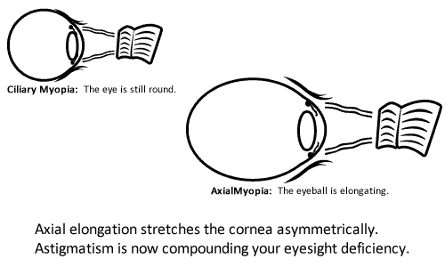 2fb72f86750c How To  Cure Your Astigmatism - The Myopia Challenge