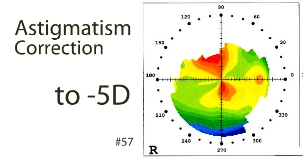 astigmatism-correction-to-5d