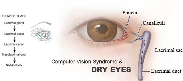 thesis on computer vision syndrome Webinar on my (your) research (sudanese researchers initiative) computer vision syndrome abstract: aim: to investigate the computer related eye problems (as.