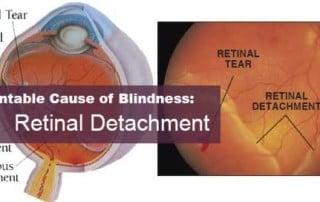 Retinal Detachment Risks