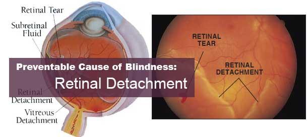 retinal detachment risks – endmyopia, Skeleton