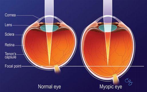 látásgátló tabletták látás mínusz vagy plusz ami azt jelenti