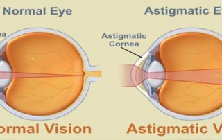 Astigmatism Caused By Ciliary Muscle