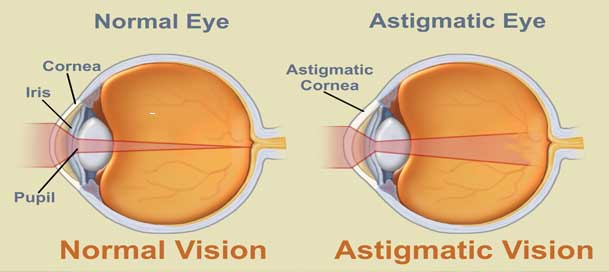astigmatism caused by ciliary muscle - endmyopia, Skeleton