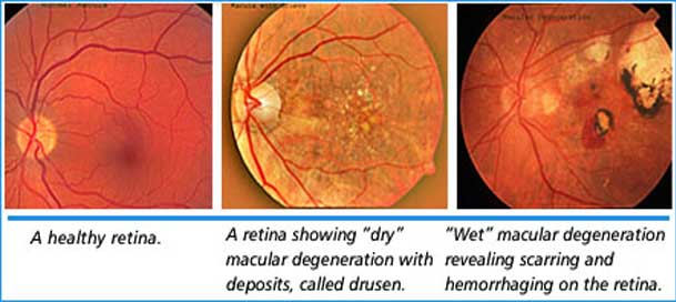 Embryonic Stem Cells To Fix Macular Degeneration