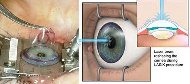Laser Eye Surgery Are You Putting Your Eyes At Risk