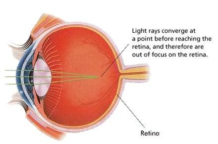 myopia pseudo látás plusz módszerek