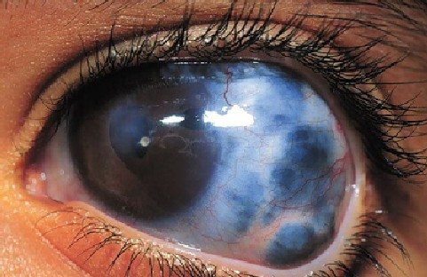 glaucoma-risk