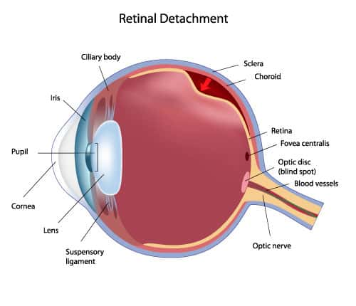 floaters-retinal-detachment