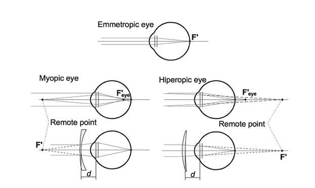 glassesfocalplane