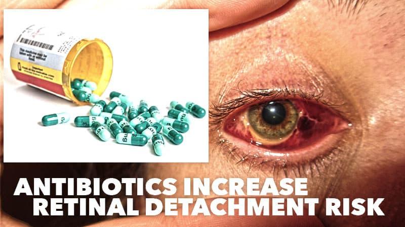antibiotics-retinal-detachment