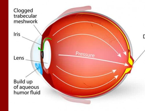 Normal Tension Glaucoma:  'Normal' Isn't Always Normal