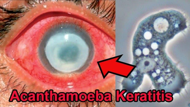 Parasit Acanthamoeba Keratitis.