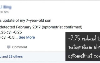 7 Year Old Child: Reduced -2.25 D To -1.50 D & Astigmatism Eliminated